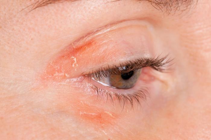 Psoriasis around the eye.