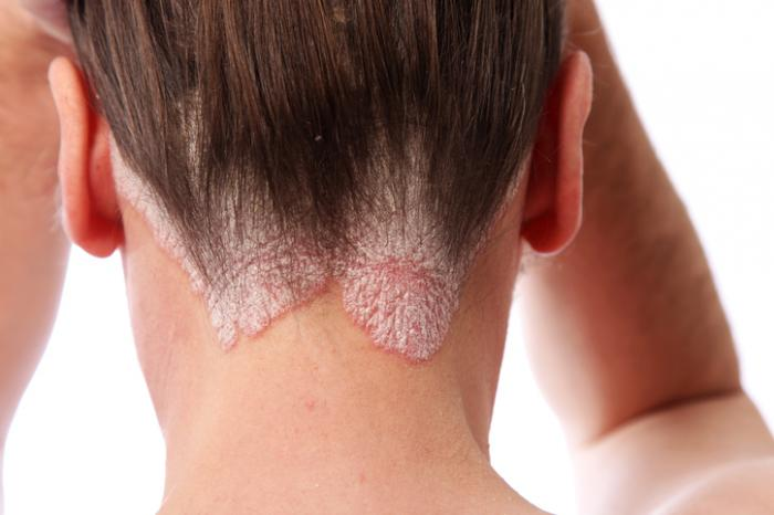 Scalp psoriasis on the back of the head.