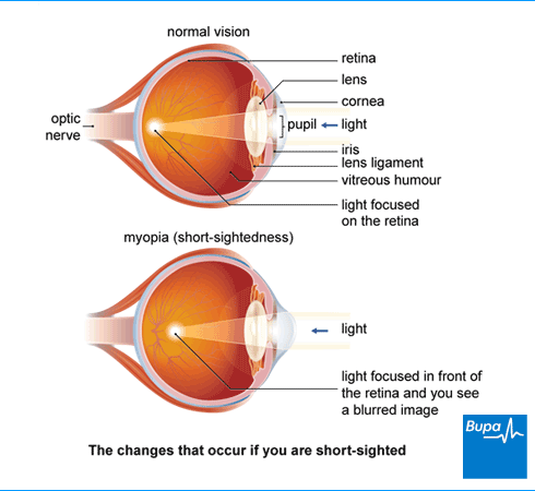 medicine for eyesight