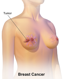 Scientists successfully combine with immunotherapy to attack breast cancer cells