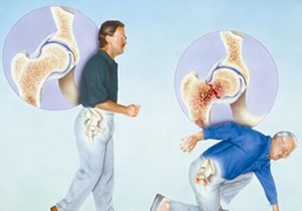 Male Friends not to be Missed Osteoporosis Screening