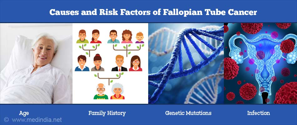 Causes and Risk Factors of Fallopian Tube Cancer