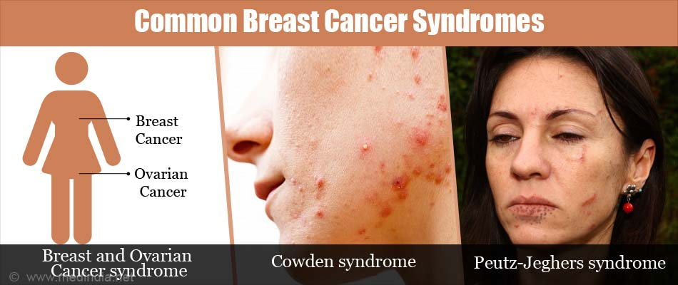 Common Breast Cancer Syndromes