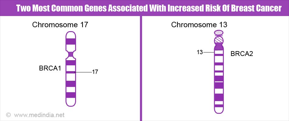 Two Most Common Genes Associated With Increased Risk Of Breast Cancer