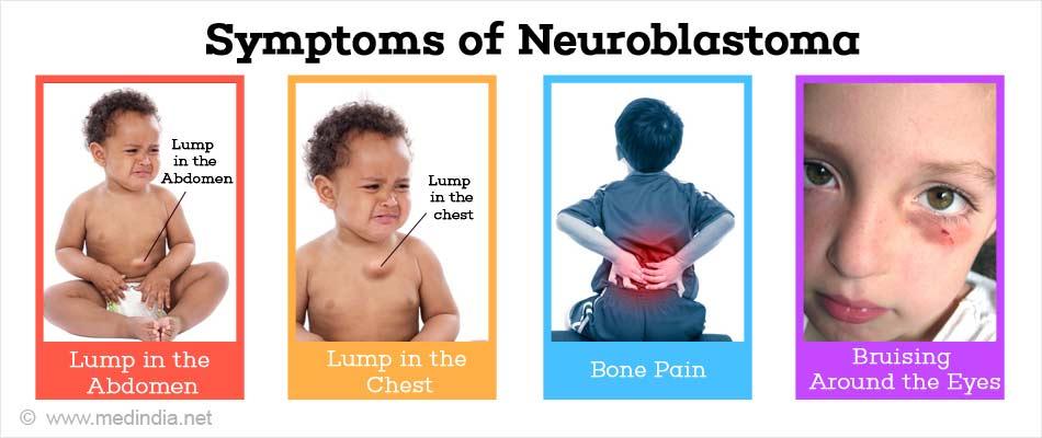 Symptoms of Neuroblastoma
