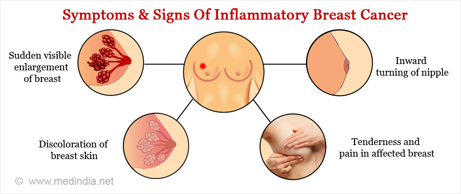Symptoms & Signs Of Inflammatory Breast Cancer