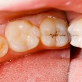 Laser Technology To Reverse The Cavities