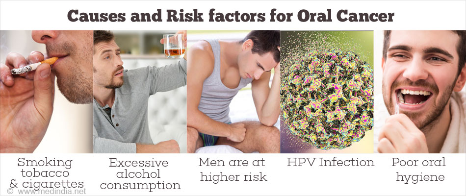 Causes and Risk factors for Oral Cancer